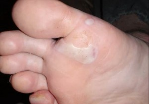 picture of blistered foot